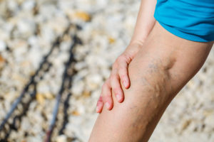 Homecare in Eufaula AL: Varicose Veins
