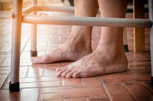 Senior Care in Ozark AL: Senior Foot Problems