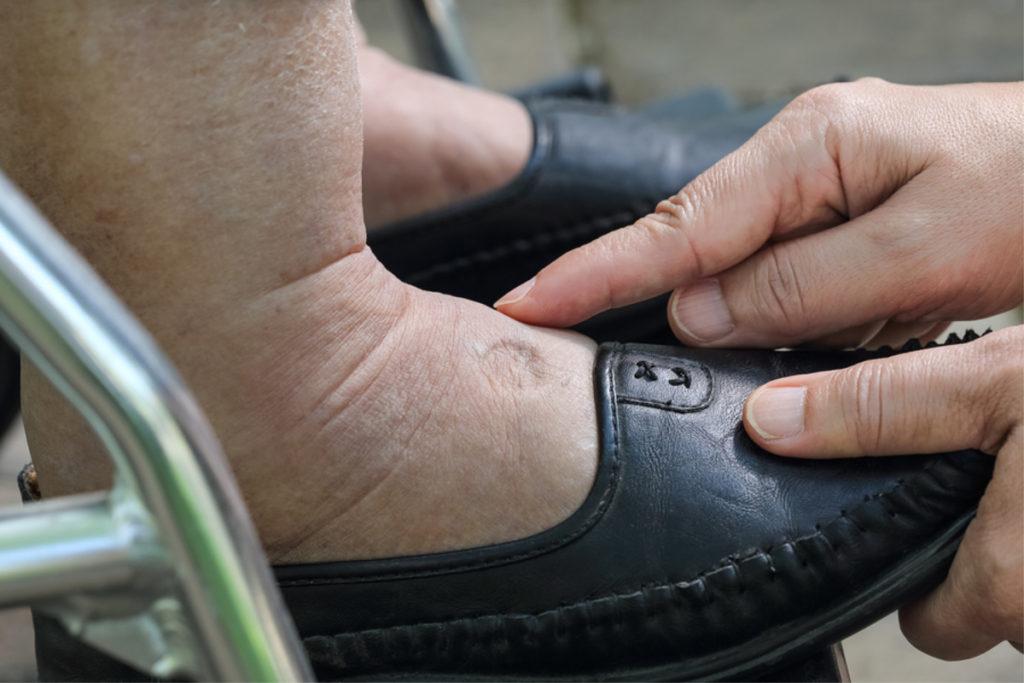 Elderly Care in Abbeville AL: Foot Care